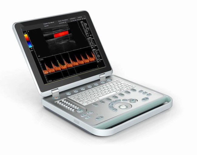 "Light Portable 3D Handheld Doppler Ultrasound Machine With 15"" LED Screen"